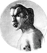Joseph Photos - Joseph Merrick, The Elephant Man by Science Source