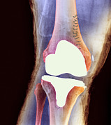 Total Knee Replacement Posters - Knee Joint Prosthesis, X-ray Poster by