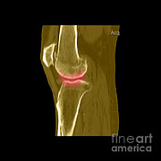 Scans Prints - Knee Showing Osteoporosis Print by Medical Body Scans