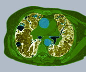 Life-threatening Metal Prints - Lung Fibrosis, Ct Scan Metal Print by Du Cane Medical Imaging Ltd
