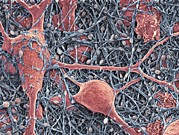 Neurons Metal Prints - Nerve Cells And Glial Cells, Sem Metal Print by Thomas Deerinck, Ncmir