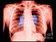 X-ray-x-ray Image Art - Sarcoidosis by Medical Body Scans