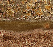 Layer Posters - Skin Layers, Sem Poster by Steve Gschmeissner