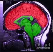 Cerebrum Posters - Mri Of Normal Brain Poster by Science Source