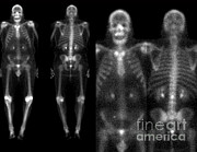 Metabolism Framed Prints - Bone Scans Framed Print by Medical Body Scans