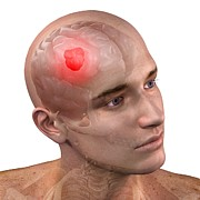 Human Head Art - Brain Cancer, Artwork by Sciepro