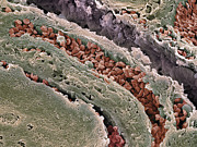 Epithelium Posters - Colon Cancer, Sem Poster by Steve Gschmeissner