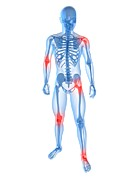 Frontal Bones Posters - Joint Pain, Conceptual Artwork Poster by Sciepro