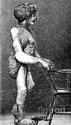 Syndrome Photos - Joseph Merrick, The Elephant Man by Science Source