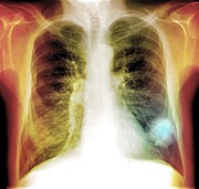 Man Machine Prints - Lung Cancer, X-ray Print by Du Cane Medical Imaging Ltd