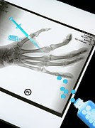 X-ray Image Art - Medical Treatment, Conceptual Image by Tek Image