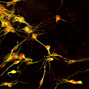 Neurons Metal Prints - Nerve Cell Growth Metal Print by Francois Paquet-durand