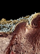 False-coloured Posters - Pyoderma Skin Disease, Sem Poster by Steve Gschmeissner