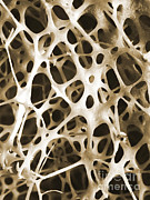 Shin Bone Prints - Sem Of Human Shin Bone Print by Science Source