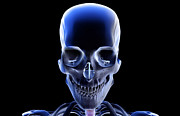 X-ray Image Art - The Bones Of The Head And Face by MedicalRF.com