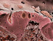 Mucosa Photos - Ulcerative Colitis, Sem by Steve Gschmeissner