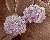 Condition Art - Breast Cancer Cells, Sem by Steve Gschmeissner