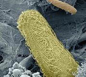 Ciliate Protozoan, Sem Print by Steve Gschmeissner
