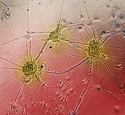 Weeks Prints - Nerve Cell Growth Print by Francois Paquet-durand