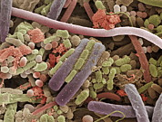 Bacteriological Posters - Tongue Bacteria, Sem Poster by Steve Gschmeissner