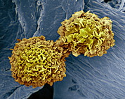 Condition Posters - Breast Cancer Cells, Sem Poster by Steve Gschmeissner