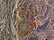 Cancer Art - Breast Cancer, Sem by Steve Gschmeissner