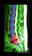 Disc Photo Posters - Herniated Disc Poster by Medical Body Scans