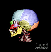 Medical Exam Art - Human Skull by Medical Body Scans