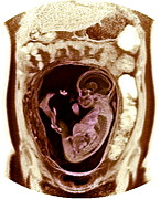 Umbilical Cord Prints - 9 Month Foetus, Mri Scan Print by Du Cane Medical Imaging Ltd