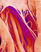 Mitral Valve Framed Prints - Heart Valve And Strings, Sem Framed Print by Susumu Nishinaga