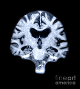 Alzheimers Posters - Mri Of Brain With Alzheimers Disease Poster by Medical Body Scans