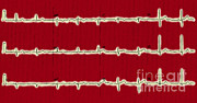 Heart Healthy Posters - Normal Ecg Poster by Science Source