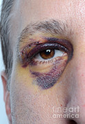 Swollen Posters - Black Eye Poster by Photo Researchers, Inc.