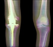 Knees Framed Prints - Knee Replacement, X-ray Framed Print by