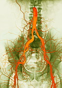 Femoral Artery Prints - Abdominal Arteries, X-ray Print by Cnri
