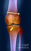 Repaired Posters - Acl Knee Repair X-ray Poster by Ted Kinsman
