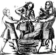 Historical Doctor Prints - Amputation, 1719 Print by Science Source