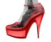 Ted Kinsman - An X-ray Of A High Heel Shoe