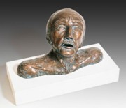 Bronze Ceramics Framed Prints - Anguished Man with Broken Nose Framed Print by Dan Woodard