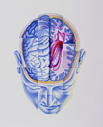 Multiple Personality Posters - Art Of Abstract Head Showing Brain Limbic System Poster by John Bavosi