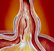 Gastro Framed Prints - Art Of Gastro-oesophageal Reflux In Hiatus Hernia Framed Print by John Bavosi