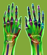 Osteology Posters - Arthritic Hands, X-ray Poster by Du Cane Medical Imaging Ltd