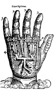 A. Paré Prints - Artificial Hand Designed By Ambroise Print by Science Source