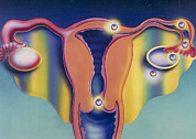 Pregnancy Metal Prints - Artwork Of A Uterus Showing Ectopic Pregnancies Metal Print by Hans-ulrich Osterwalder