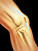 Human Joint Art - Artwork Of Bones & Ligament In Human Knee Joint by David Gifford