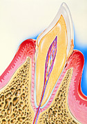 Calculus Posters - Artwork Of Tooth Showing Periodontal Disease Poster by John Bavosi
