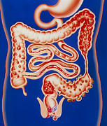 Intestinal Framed Prints - Artwork Showing A Range Of Intestinal Diseases. Framed Print by John Bavosi