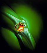 Arthritis Prints - Artwork Showing Arthritis Of The Knee Joint Print by David Gifford