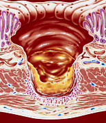 Gastric Ulcer Prints - Artwork Showing Close-up Of Gastric Ulcer Print by John Bavosi