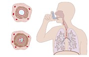 Contraction Photos - Asthma Pathology And Treatment, Diagram by Peter Gardiner